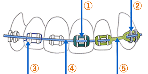 マルチブラケットの説明図