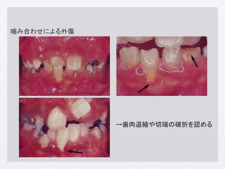 噛み合わせによる外傷→歯肉退縮や切端の破折を認める