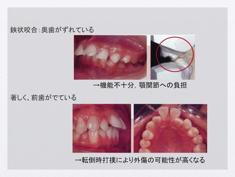 (上)鋏状咬合:奥歯がずれている→機能不十分,顎関節への負担/(下)著しく前歯がでている→転倒時打撲により外傷の可能性が高くなる