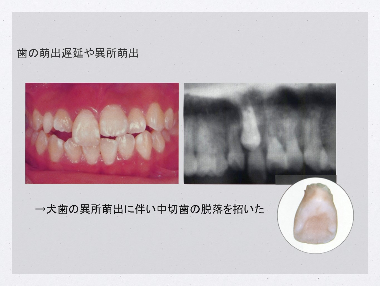 歯の萌出遅延や異所萌出→犬歯の異所萌出に伴い中切歯の脱落を招いた