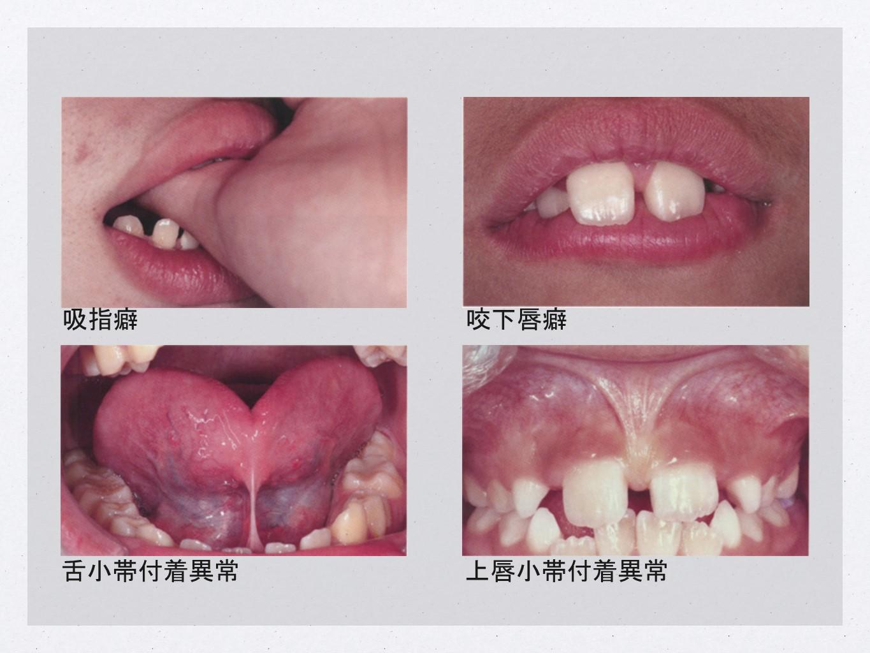 吸指癖/咬下唇癖/舌小帯付着異常/上唇小帯付着異常