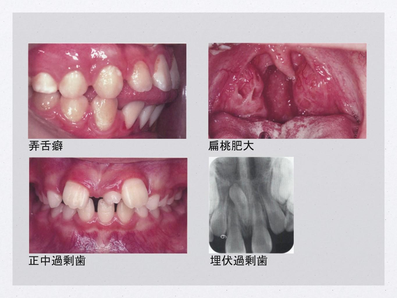 弄舌癖/扁桃肥大/正中過剰歯/埋伏過剰歯