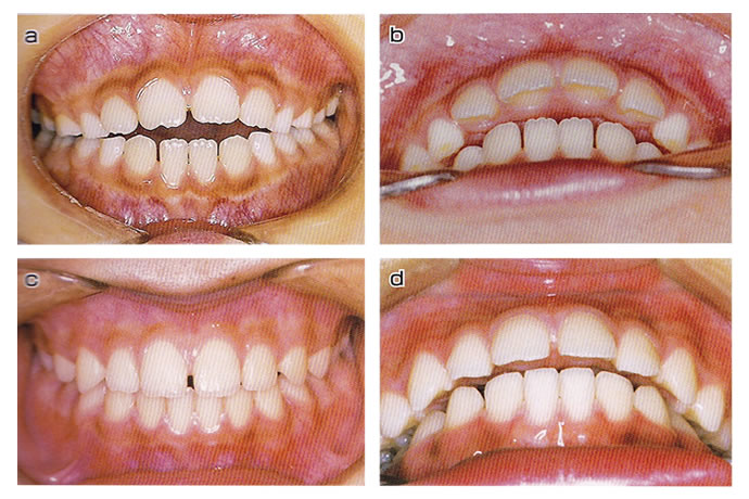 口腔筋機能トレーニング前と後の様子