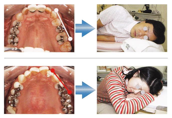 寝る姿勢の影響で歯列が変形する例